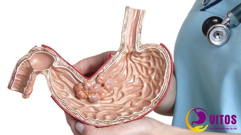Viêm loét dạ dày tá tràng do đâu? Có nguy hiểm không?