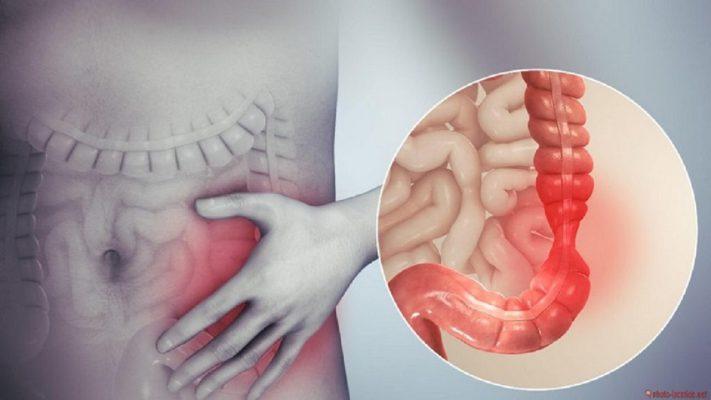 các yếu tố gây ung thư dạ dày